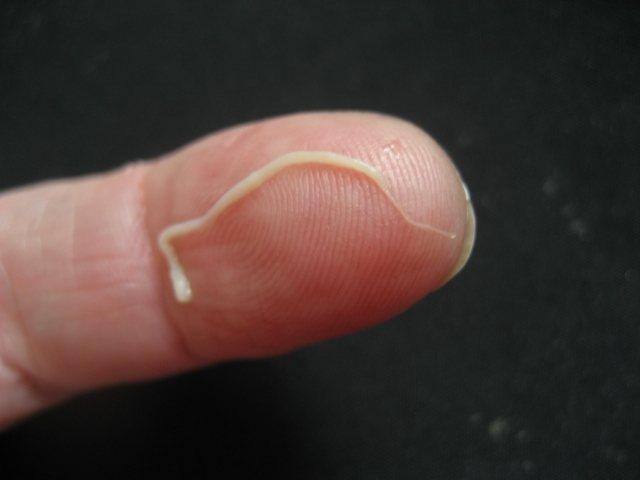 вплив вермоксом на паразитів