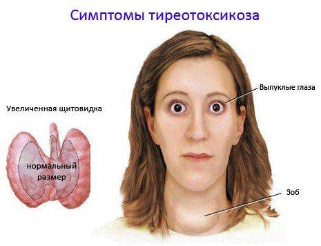 Зовнішні прояви тиреотоксикозу