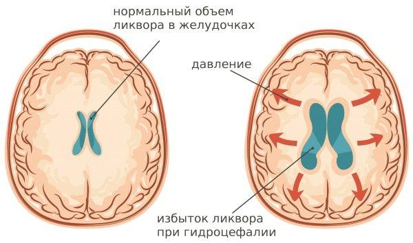 Внутрішньочерепний тиск. Симптоми у дорослих, як визначити, причини і лікування