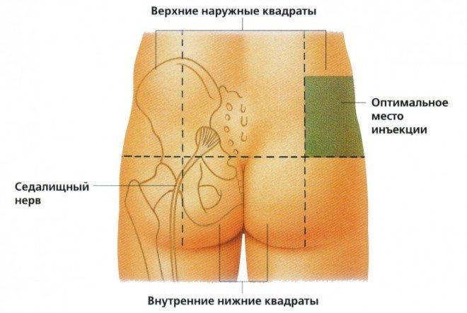 внутрішньом'язово укол