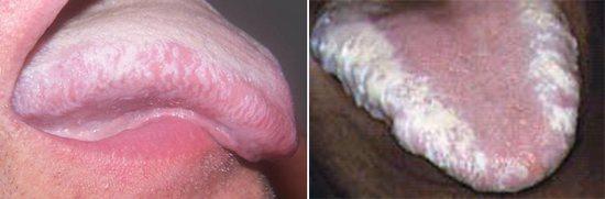 волохатий лейкоплакія язика