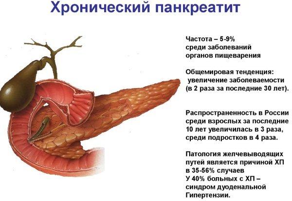 Запаленою підшлункової залоза.  Симптоми и лікування, дієта для дорослих, дітей