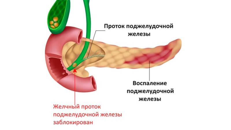 запаленою підшлункової залоза Симптоми и лікування