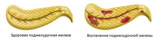 Запалення підшлункової залози