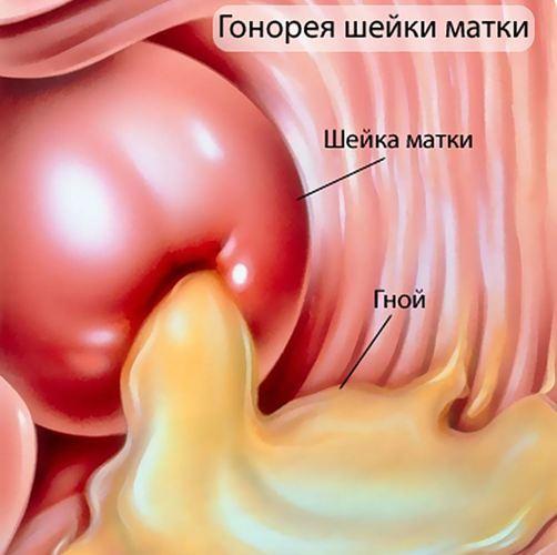 Запалення уретри у жінок. Симптоми і лікування, народні засоби від уретриту