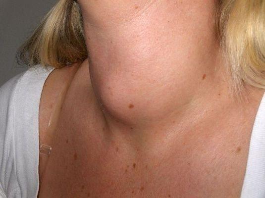 запалення вузлів на щитовидці