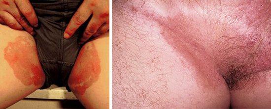 запалення в паху у чоловіків і жінок