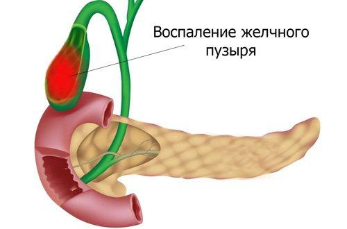 запалення жовчного при холециститі