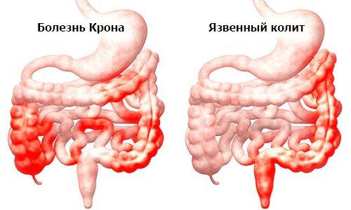 запальні ураження кишечника