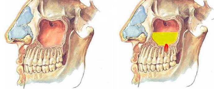Запальні процеси в носоглотці