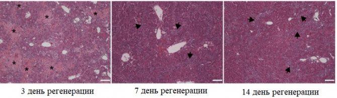 Відновлення печінкової тканини холангіоцитів