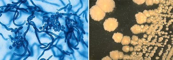 збудники пахової епідермофітії