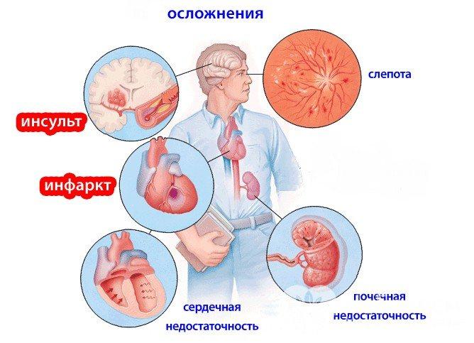 Можливі ускладнення гіпертонічної хвороби