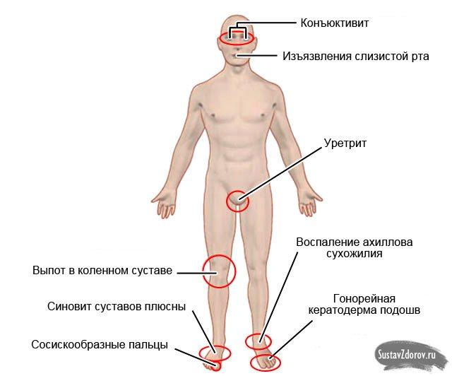 можливі симптоми, які супроводжують реактивний артрит