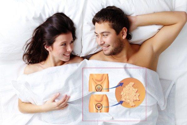 ВПЛ у жінок - що це таке, симптоми, типи, як передається, лікування вірусу папіломі людини в гінекології