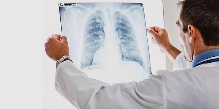 Лікар досліджує рентген