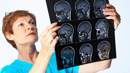 лікар вивчає мрт мозку