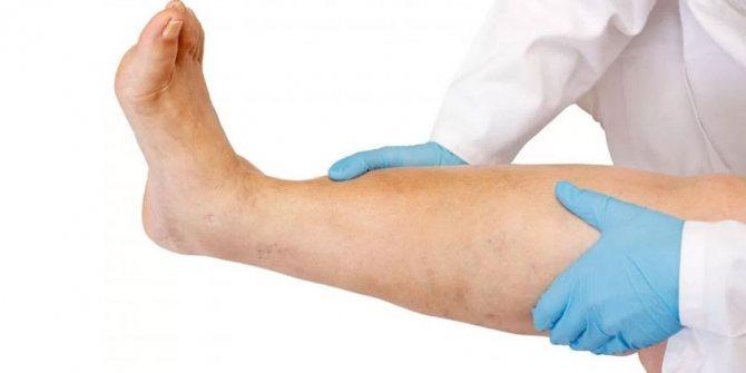 Лікар оглядає ногу пацієнта