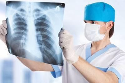 Лікар оглядає рентген легенів