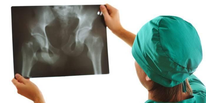 Лікар дивиться на рентгенівський знімок тазостегнових суглобів