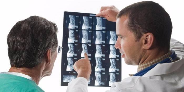 Лікарі дивляться на знімок