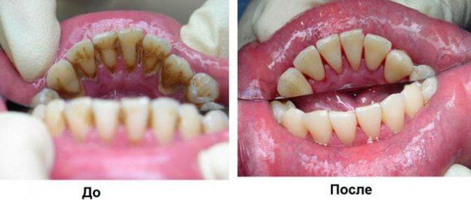 шкода зубного каменю
