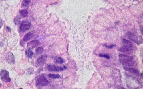 Шкідливий мікроб живе в шлунку