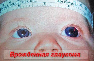вроджена глаукома