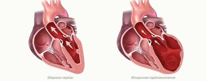 вторинна кардіоміопатія
