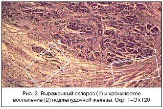 Вираженість склероз и хронічне запаленою підшлункової залоза