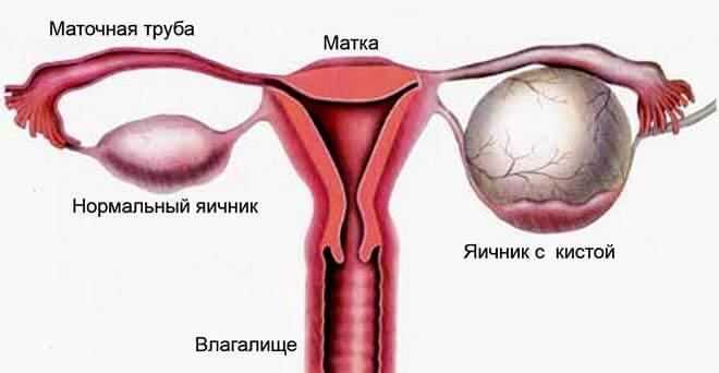 яєчнік в нормі и з кістознім новоутворенням