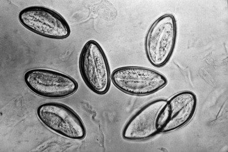 Яйця гостриків під мікроскопом