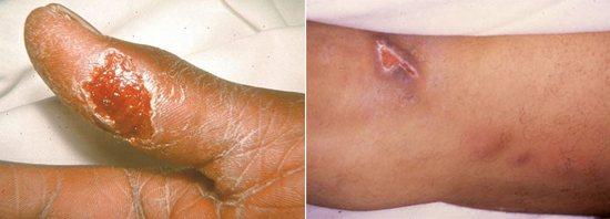 виразка на місці укусу при туляремії