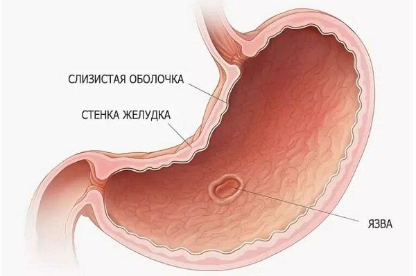 віразка шлунку