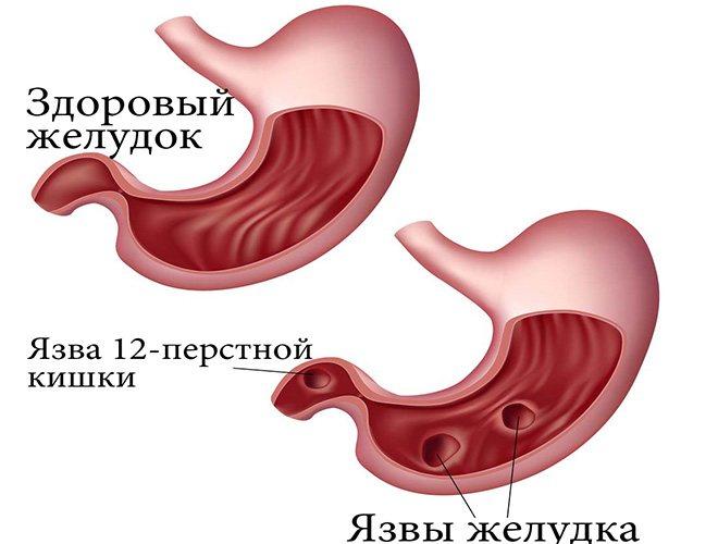 виразки шлунка