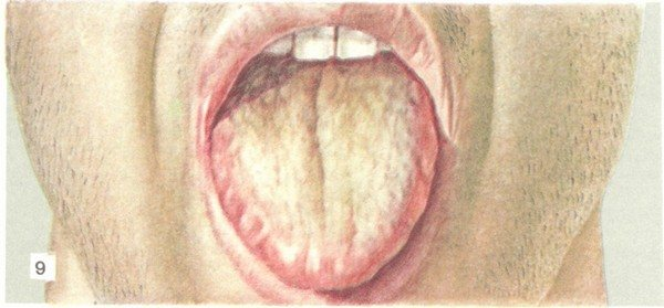 Мова хворого на черевній тиф