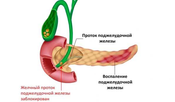 Заблокованості жовчній потік при панкреатіті