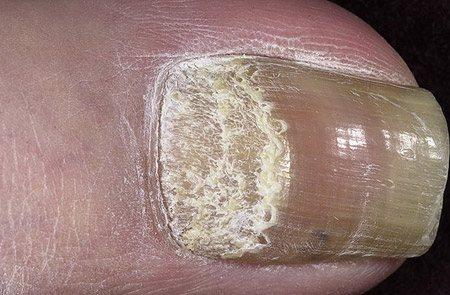 захворювання нігтів при псоріазі