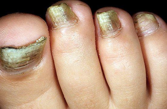 захворювання нігтів, викликане пліснявими грибками