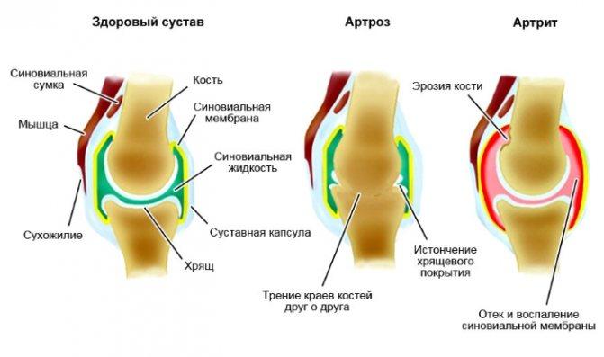 Захворювання артрит і артроз