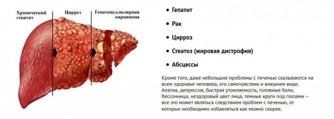 захворювання печінки