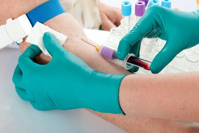 Забір аналізу крові