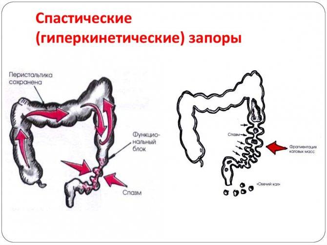затримка стільця при гіпертонусі кишечника