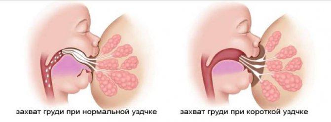 Захоплення грудей при грудному вигодовуванні