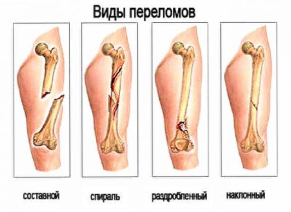 Закритий перелом Симптоми Класифікація Діагностика Перша допомога Лікування