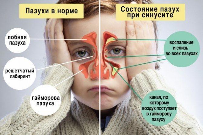 закладеність носа у дитини