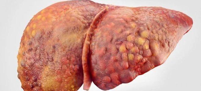 зараження дітей гепатитом