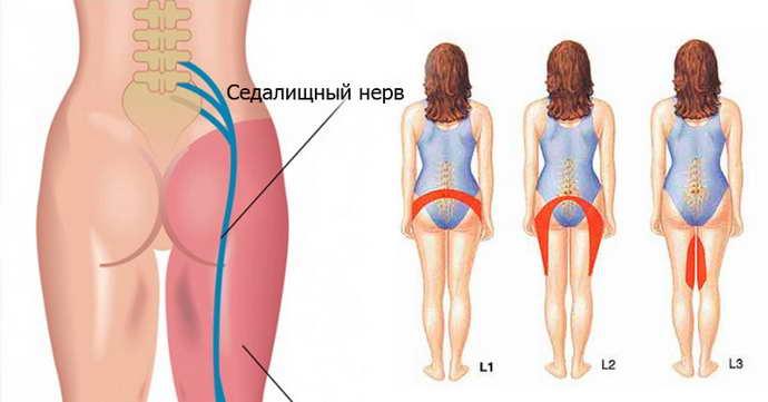 защемлення сідничного нерва