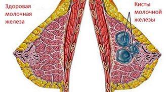 здорова груди и грудей з кістозної капсули