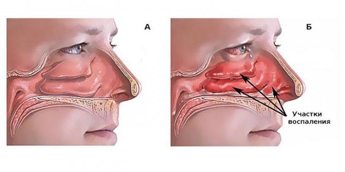 Здорова слізова носа и запалена